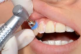 予防歯科のイメージ