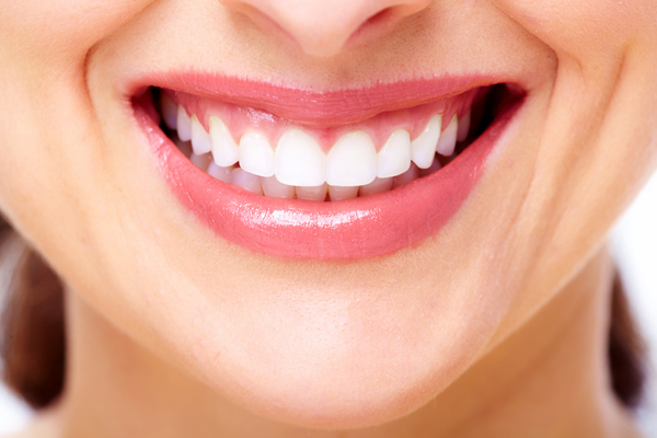 審美歯科のイメージ
